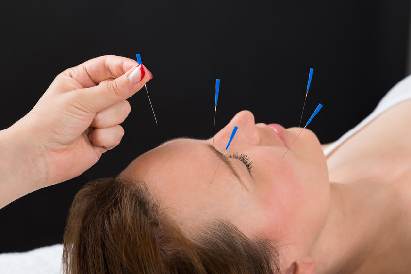 ronflement acupuncture