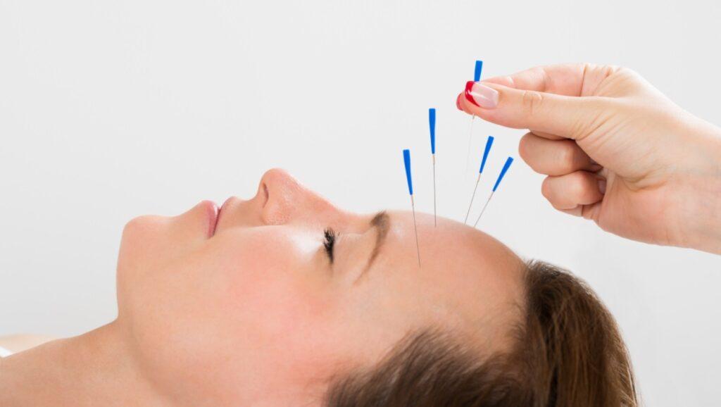 remboursement séance acupuncture